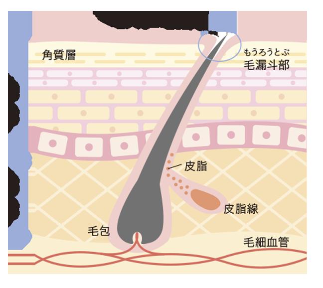 毛穴の断面(イメージ)